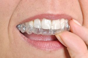 causes of teeth problems