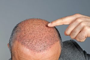 scap hair treatment